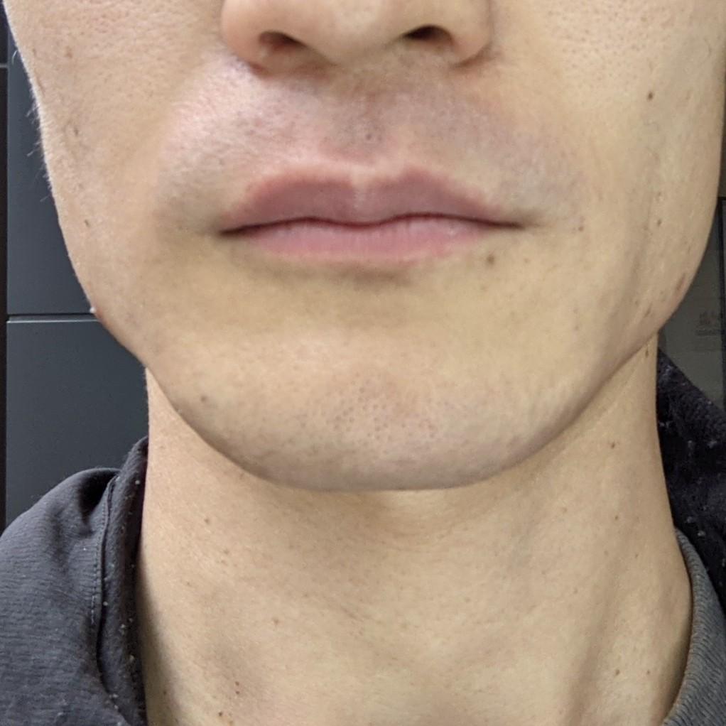 ジェントレーズでヒゲ脱毛した後の口周りの写真